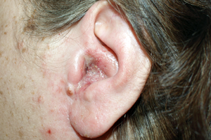 Otitis media & other types of ear infections